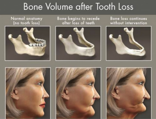 Note how loss of teeth leads to bone loss and a collapsed face