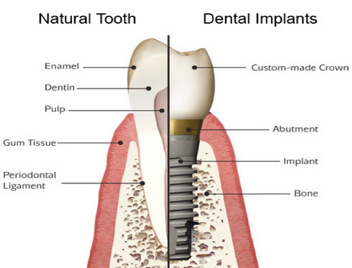 Comparison between a natural tooth and dental implant