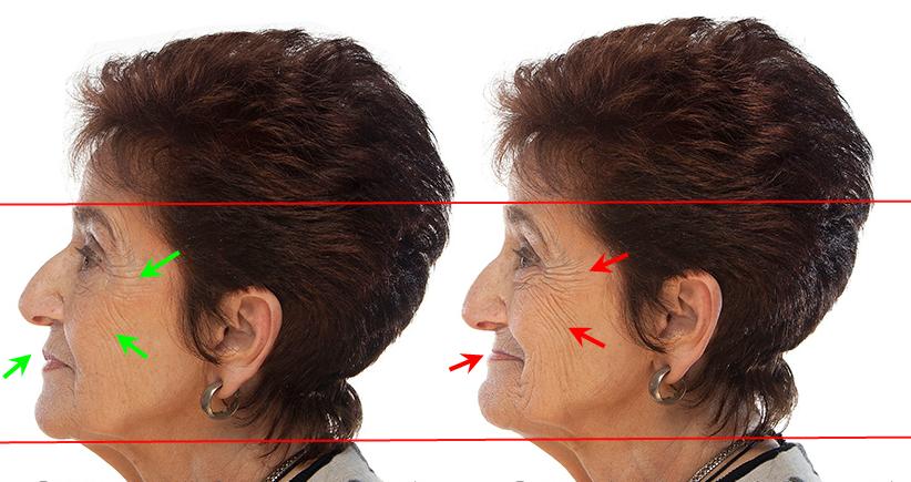 denture facelift2