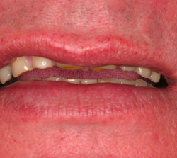 loss of tooth structure due to acid damage