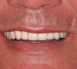 Smile design after damage of teeth due to eating disorder