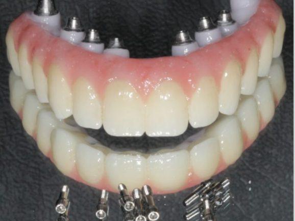 Implant-fixed-denture-Dental-Rehab-1024x1001